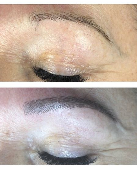 GLOW Clinic microblading before and after PICTURE: Sue Adams