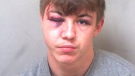 Perry wise, 18, of St Osyth, was detained by holiday park staff members after stabbing a man in the