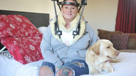Bexx will have to wear her halo for 12 weeks Picture: SARAH LUCY BROWN
