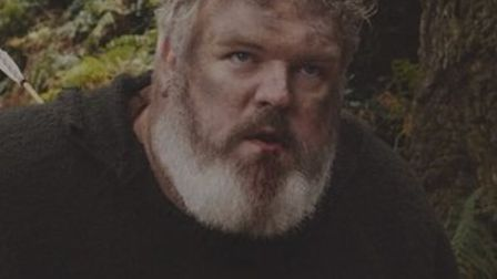 Kristian Nairn stars as Thomas in the new film Robin Hood: Rebellion. Photo: Picture Perfect