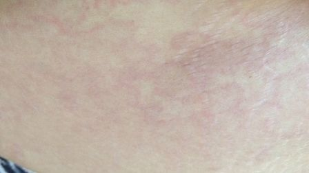 Zara Taylor broke out in a rash on her stomach following the tick bite in Sudbury. Picture: ZARA TAY