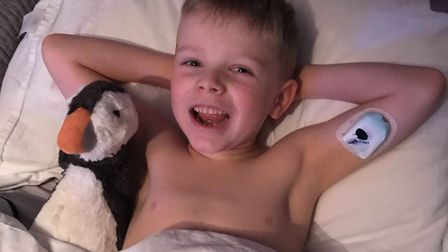 Spencer and his patch pump which gives him insulin Picture: KIRSTY ALLAN