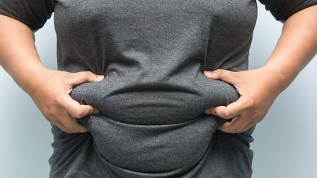 Obesity related hospital admissions have increased in Suffolk Picture: GETTY IMAGES/ISTOCKPHOTO