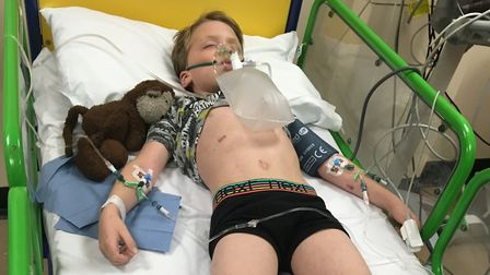 Oliver Hall in hospital fighting for his life, just four and a half hours before he died Picture: BR