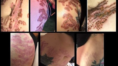 Images of the infected wounds and scars that Amiee Ward suffered after a skin-tightening treatment P