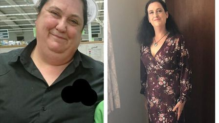 Tracy Arnold, from Colchester, pictured before and after her 11st 7lb weight loss. Picture: TRACY AR