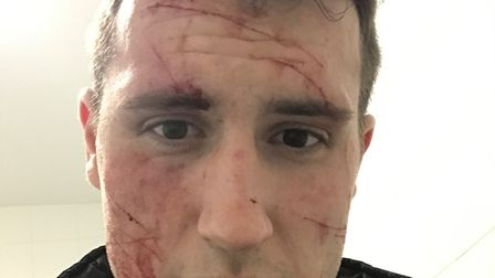 Richard Phillips received 18 cuts to his face and neck in the earlier armed robbery, which he says l