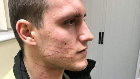Richard Phillips received 18 cuts to his face and neck in the armed robbery. Picture: RICHARD PHILLI