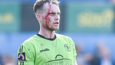 Chris Smith, pictured after cutting his head playing for King's Lynn Town. Photo: Ian Burt