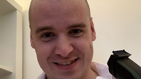 Ipswich MP Tom Hunt shaved his head to raise cash for the charity Picture: TOM HUNT