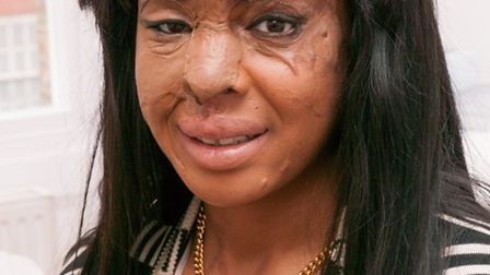 Naomi Oni after having new eyebrows created