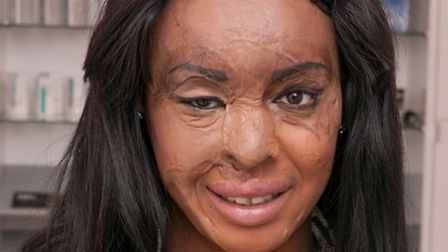 Naomi Oni 10 months after the acid attack