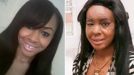Naomi Oni before the attack and after surgery following the incident