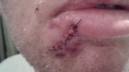 The victim needed stitches after being bitten by a dog