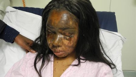 Mary Konye was jailed for 12 years in 2014 for throwing sulphuric acid in the face of Victorias Sec