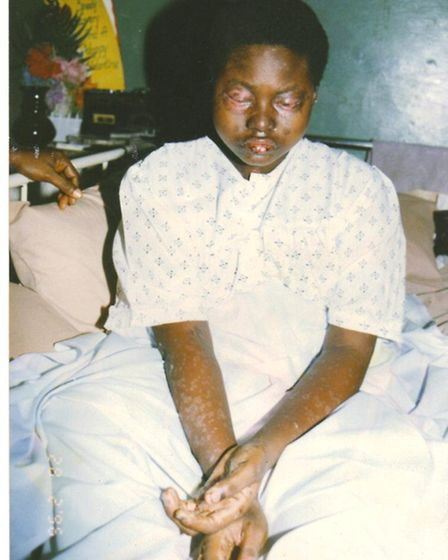 Nadier as she began to recover from the initial phase of the disease in 1996