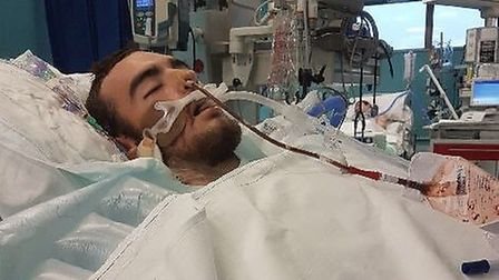 Victim Tyler Dawson critically ill in hospital after being stabbed. Picture: Kerry Dawson
