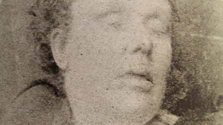 Mortuary photograph of Annie Chapman, murdered at 29, Hanbury-st, on Seprtember 8, 1888