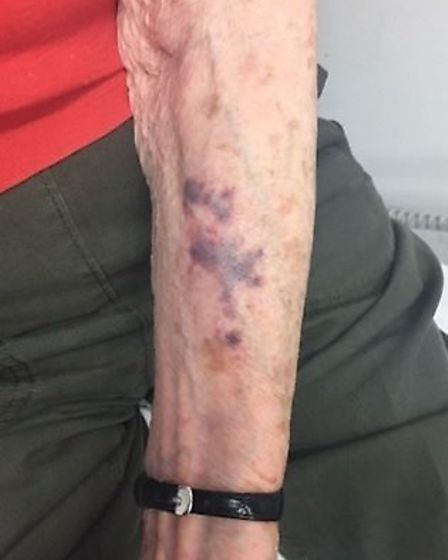 The 92-year-old woman was left with bruising on her arm after the violent attack