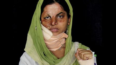 Exhibition of acid attack victims from around the world on show at Spitalfields' Leyden gallery unti