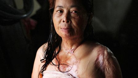 Cambodian acid victim Chantheoun, now 38, attacked in 1997 in Phnom Penh by a jelous wife. Picture: