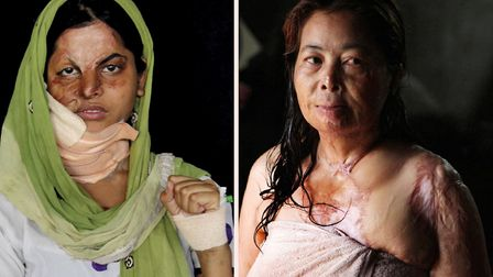 Vicitms of domestic acid attacks in Asia whose horrific stories were told in a photo exhibition at t