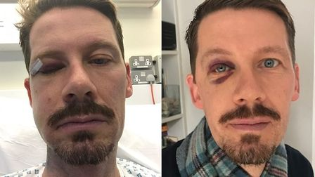 Gordon Maxwell was attacked in Commercial Road. Picture credit: Met Police.