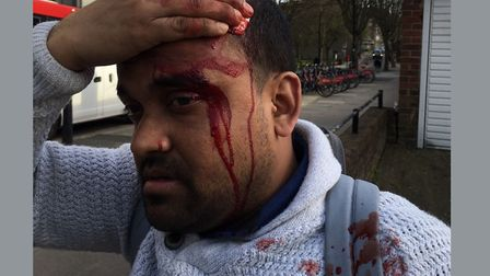 Tower Hamlets election candidate Abdullah Al Mamun after the attack in Wapping. Picture source: Aspi