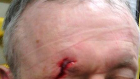 The victim suffered a facial injury. Pic: City of London Police
