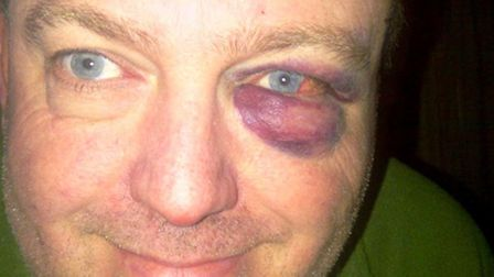Cllr Jonathan Farmer after being released from hospital following a fall