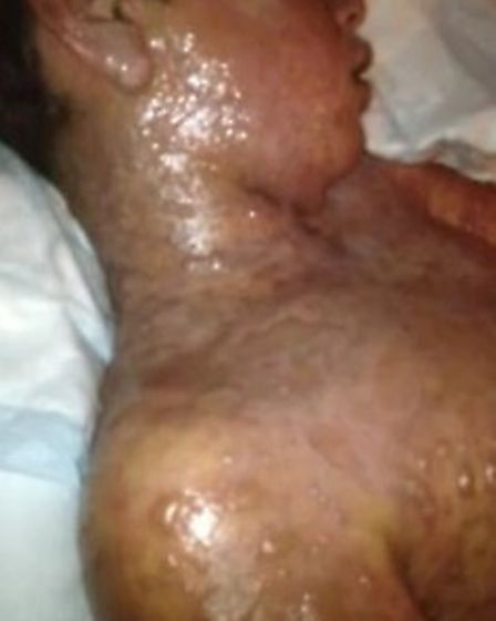 Calvin suffered 65 per cent burns to his body