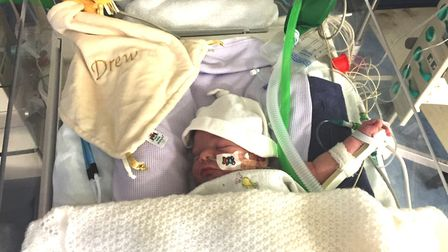 Drew Smart was diagnosed with a rare condition from birth. His family were supported by the Sick Chi