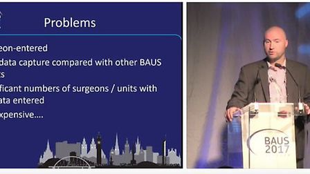 BAUS conference 2017 Chris Harding speaks on the problems of under reporting of mesh surgery outcome