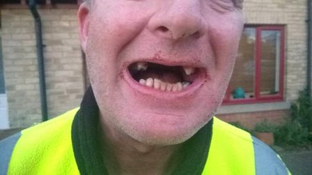 Milkman loses teeth in assault in Belsay Drive, Peterborough. PHOTO: Cambs Police