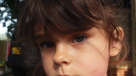 Skyla Boldan was attacked by a Jack Rusell terrier in Estover Road, March, in June this year.