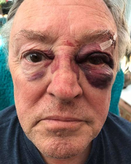 Man left bloodied and in need of stitches after allegedly unprovoked attack at Sainsbury's March car