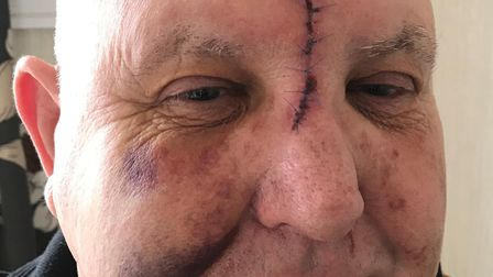 The 67-year-old victim was left with serious facial injuries after being pulled out of his van and r