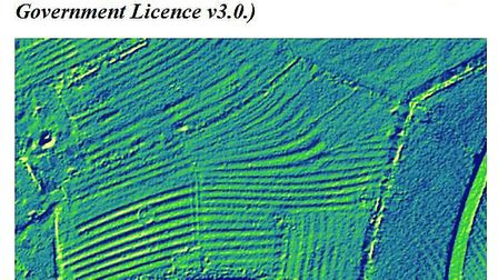 """The LIDAR image exposes the """"ridge and furrow"""" earthworks, which date back to early medieval (15th c"""