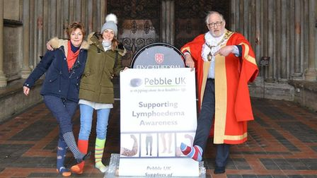 Pebble UK raises awareness of lymphodoema in an odd socks campaign in Ely Cathedral. Picture: MIKE