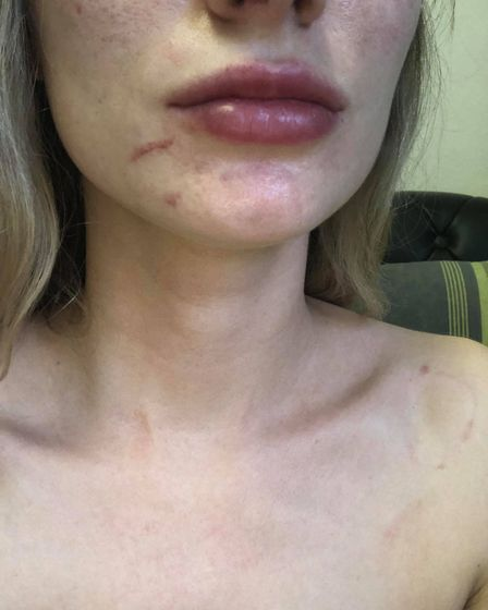 Emily Szebesta was attacked in March High Street. Police are appealing for witnesses after she was l