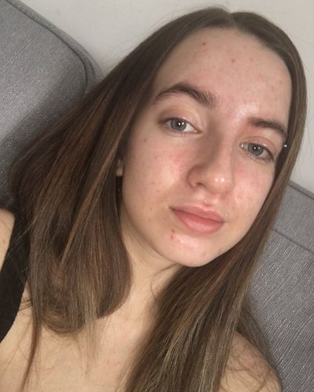 Erin Cawdron (pictured), a Littleport student suffering with a skin condition, is hoping to promote