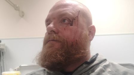 Spencer Neilly (pictured) was out for a run in Meadowgate Lane, Wisbech when he was approached by tw