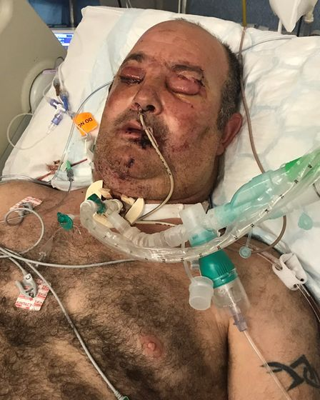 Neil was admitted to hospital with life-threatening injuries after the accident. Picture: SUBMITTED