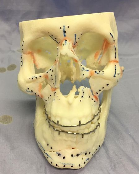 The 3D model of Neil's skull after he was put into an induced coma. Picture: SUBMITTED
