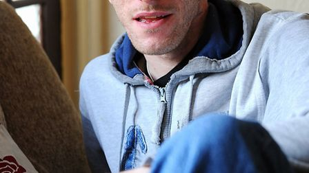 Michael Evans who is recovering at home after being attacked by Daniel Brzozowski who was jailed for