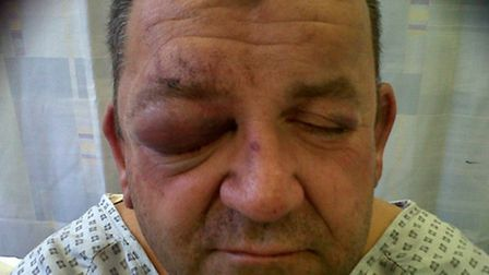 Photos taken by his wife Elizabeth at Kings Lynn Hospital hours after Tony Slabber had been attacked