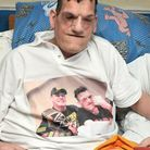 """Robert Smith. Robert has proteus syndrome - bone overgrowth and gigantism - he is 8' 5"""" tall and needs a motorised..."""