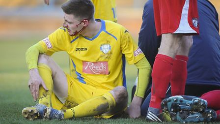 Action from King's Lynn Town v Buxton at The Walks - Dan Quigley recovers from a head injury. Pictur