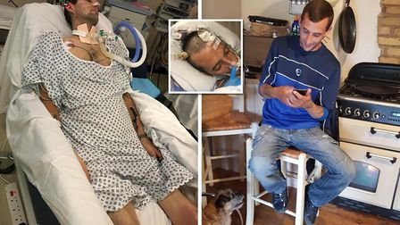 Christopher Chapman from Chatteris underwent amputation of both legs after being diagnosed with sepsis at Addenbrooke?s...