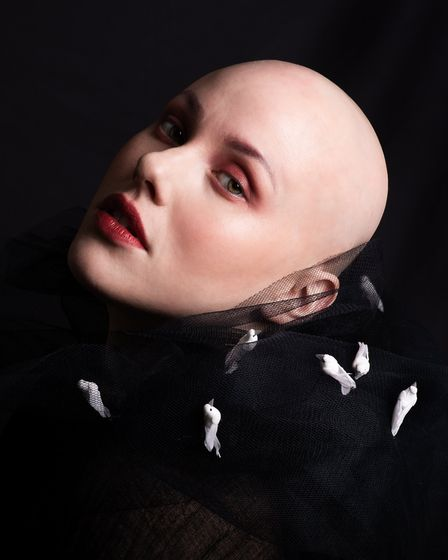 Laura Mathias is a bald 29-year-old woman from Manningtree who recently started sharing her experience of alopecia on...